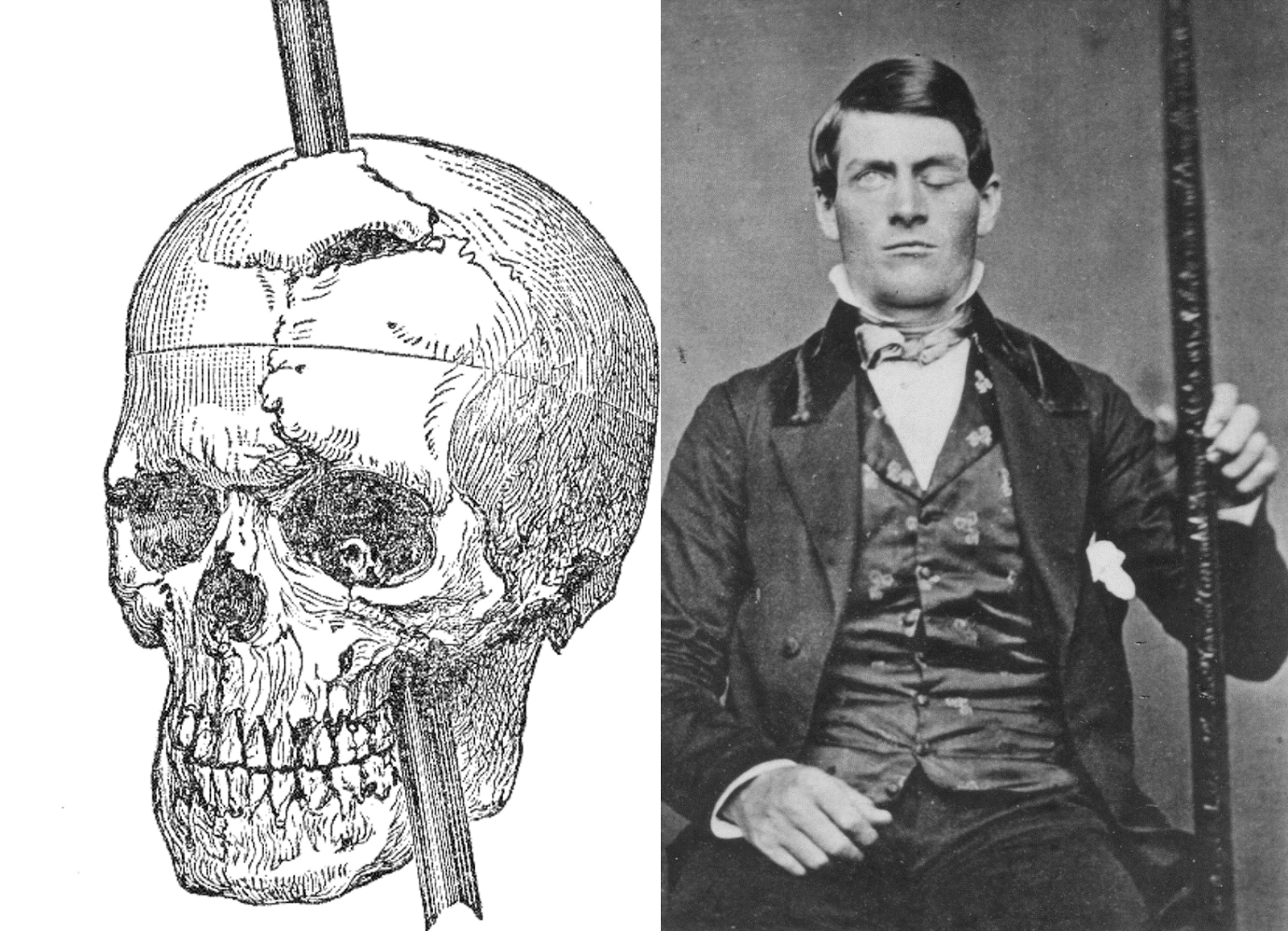 The Curious Case of Phineas Gage